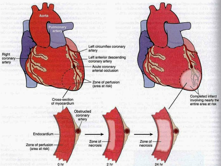 Muscular Layer Of The Heart