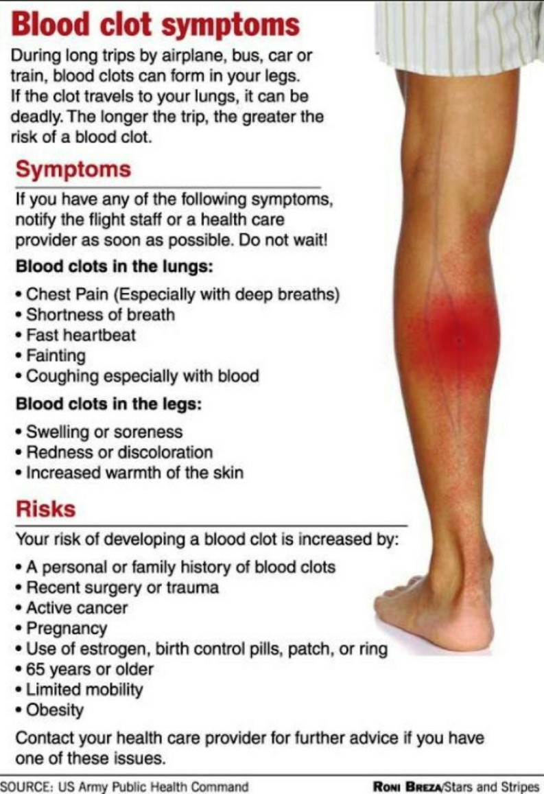Blood Clot In Leg Symptoms
