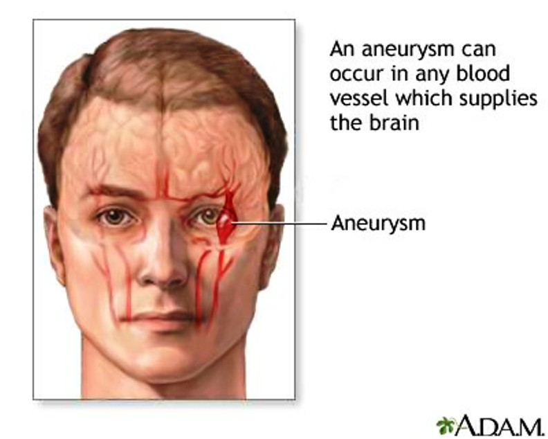 Brain Aneurysm Symptoms Pictures Wallpapers