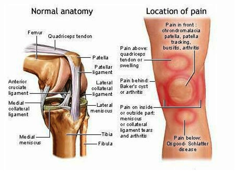 Knee Bursitis Pictures Wallpapers
