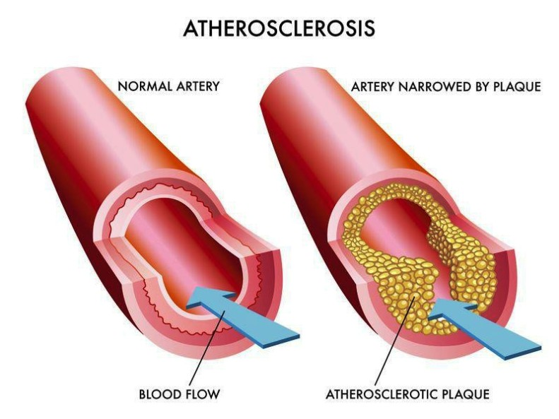 Photo Of Arteriosclerosis