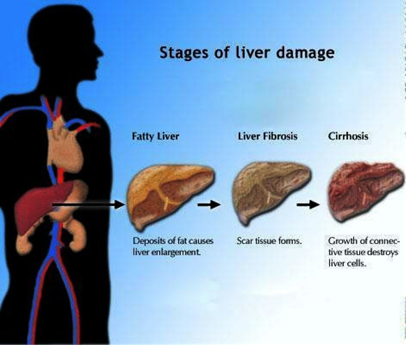 Stages Of Liver Damage Pictures Wallpapers