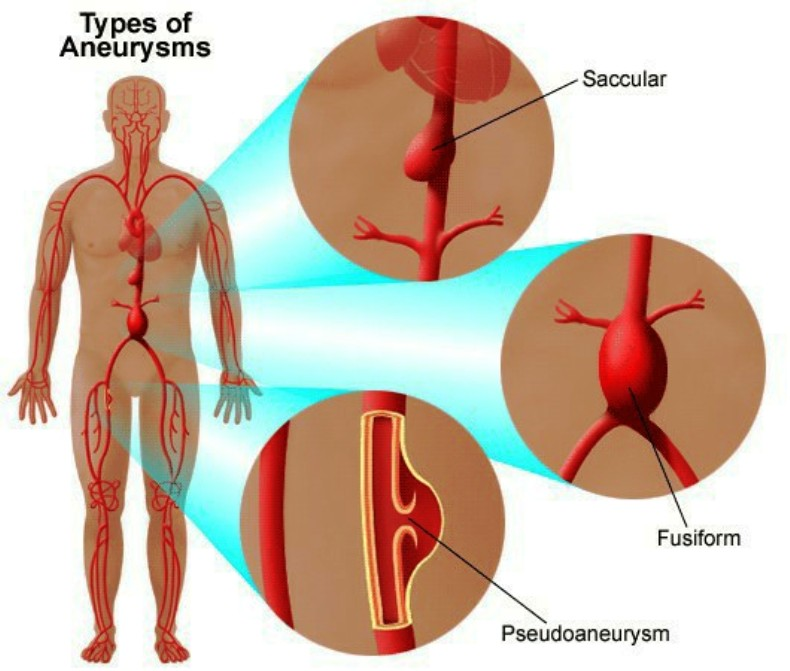 Types Of Aneurysms Pictures Wallpapers