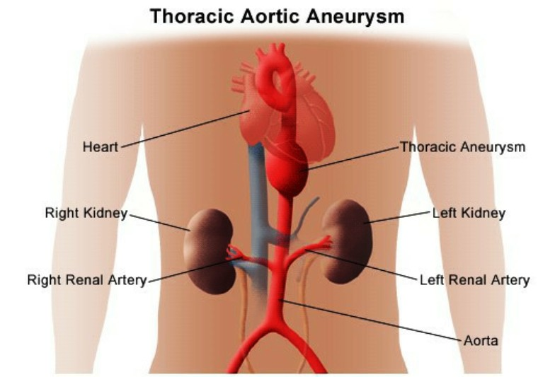 What Is a Thoracic Aortic Aneurysm (TAA) Pictures Wallpapers