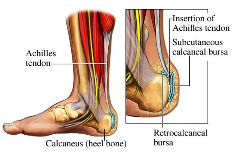 What is Bursitis of the Heel