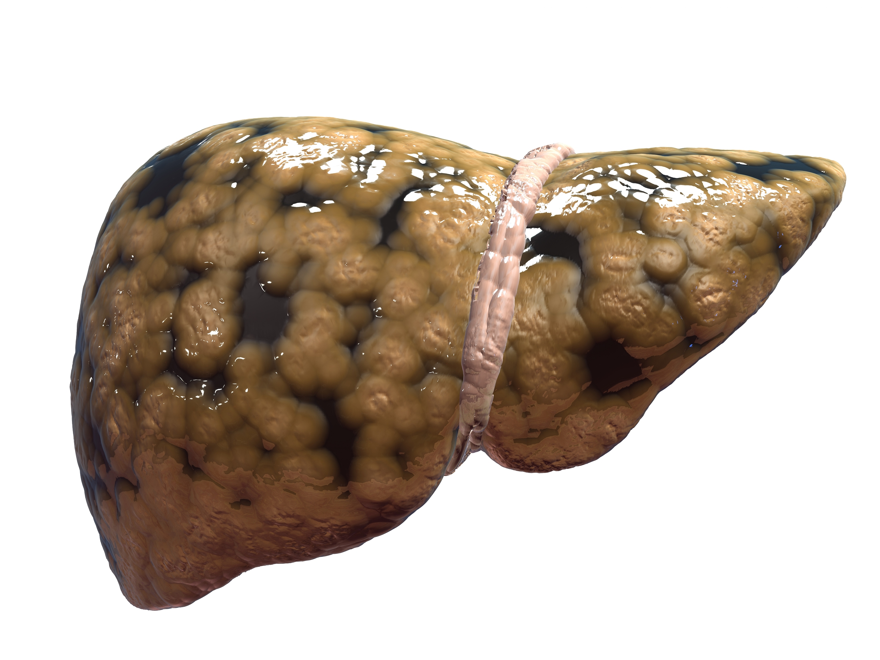 Baliga Diagnostics Pvt Ltd Fatty Liver What Is It Pictures Wallpapers
