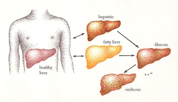 Causes Of Cirrhosis Of Liver Healthy Liver And Cancer Pictures Wallpapers