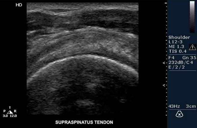 Ultrasound Clinical Images Pictures Wallpapers