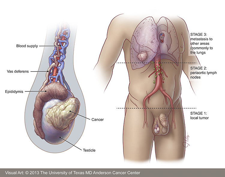 Cancer Testicular Pictures Wallpapers