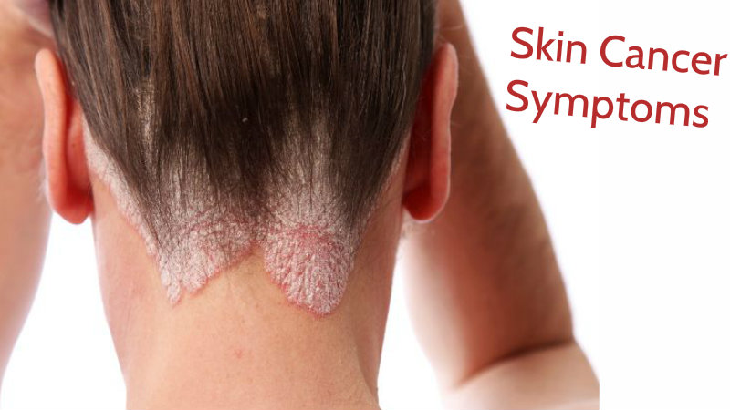 Causes Of Melanoma Skin Cancer Pictures Wallpapers