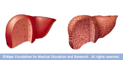 Early Signs Of Liver Damage From Alcohol Healthy Liver And Cancer Symptoms Pictures Wallpapers