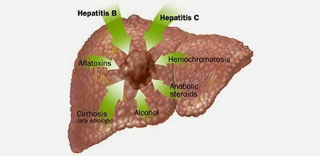 Liver Cancer Causes Of Liver Cancer Liver Cancer Symptoms Pictures Wallpapers