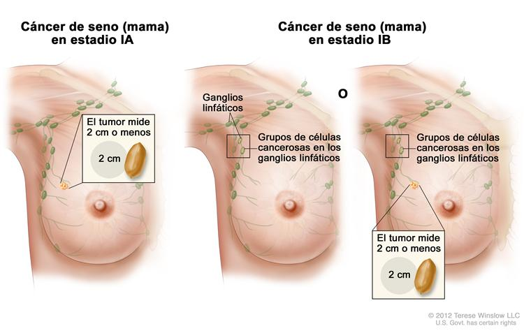Mama Cancer Pictures Wallpapers