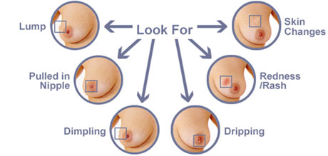 Signs Of Breast Cancer Pain Pictures Wallpapers