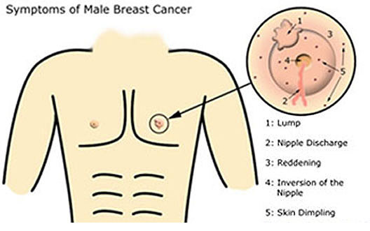 Symptom Of Breast Cancer In Men Ssvxnd