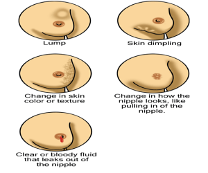 What Are The Sign Of Breast Cancer For Women Pictures Wallpapers