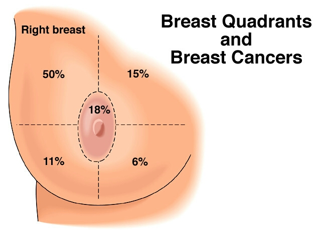 Where Is The Lump In Breast Cancer Pictures Wallpapers