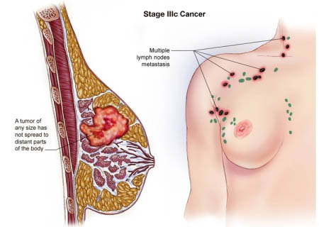 Lung Cancer Metastasis To Liver Pictures Wallpapers