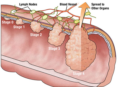 Stages Of Colon Cancer Pictures Wallpapers