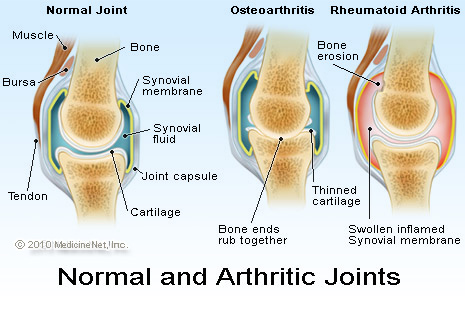 Nursing Care Plan For Osteoarthritis Pictures Wallpapers