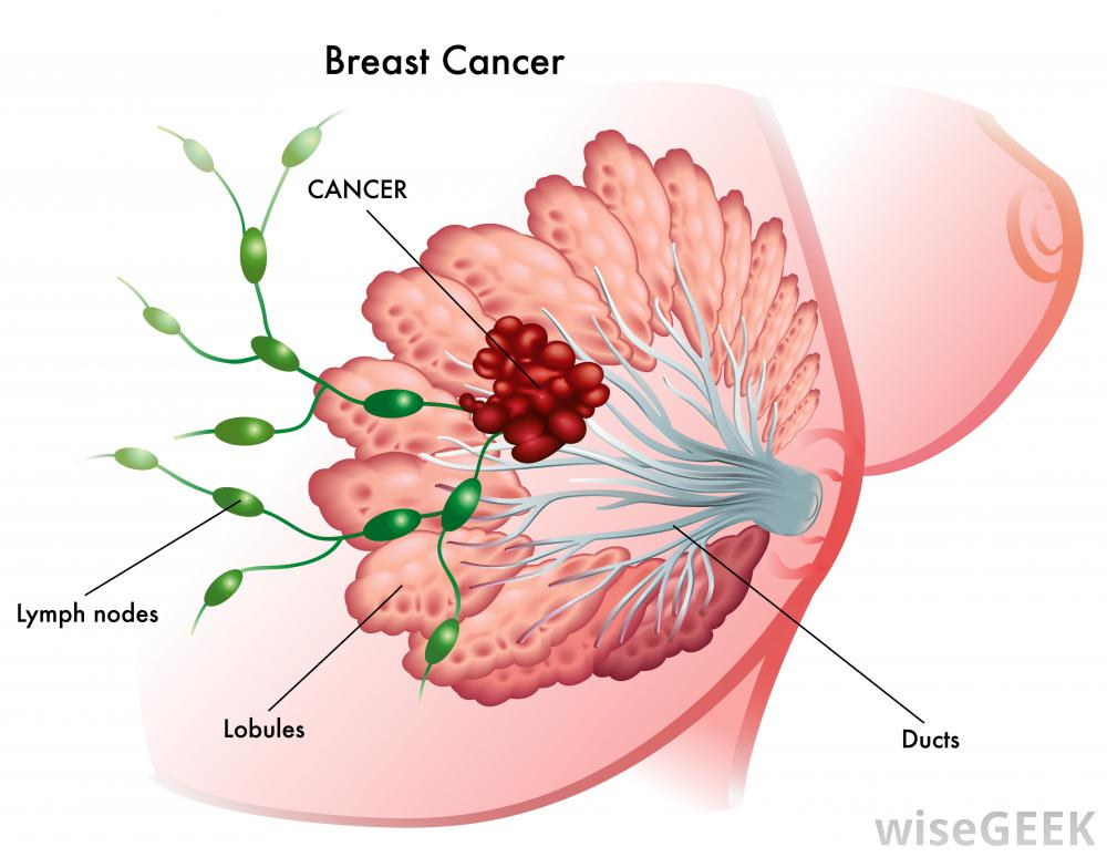 Picture Of Breast Cancer Pictures Wallpapers