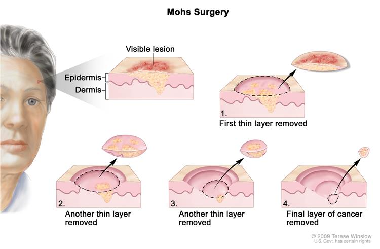Signs And Symptoms Of Melanoma Skin Cancer Pictures Wallpapers