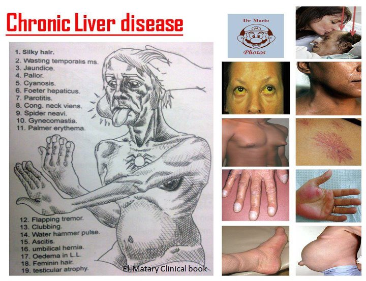 Signs Of Liver Cancer Pictures Wallpapers