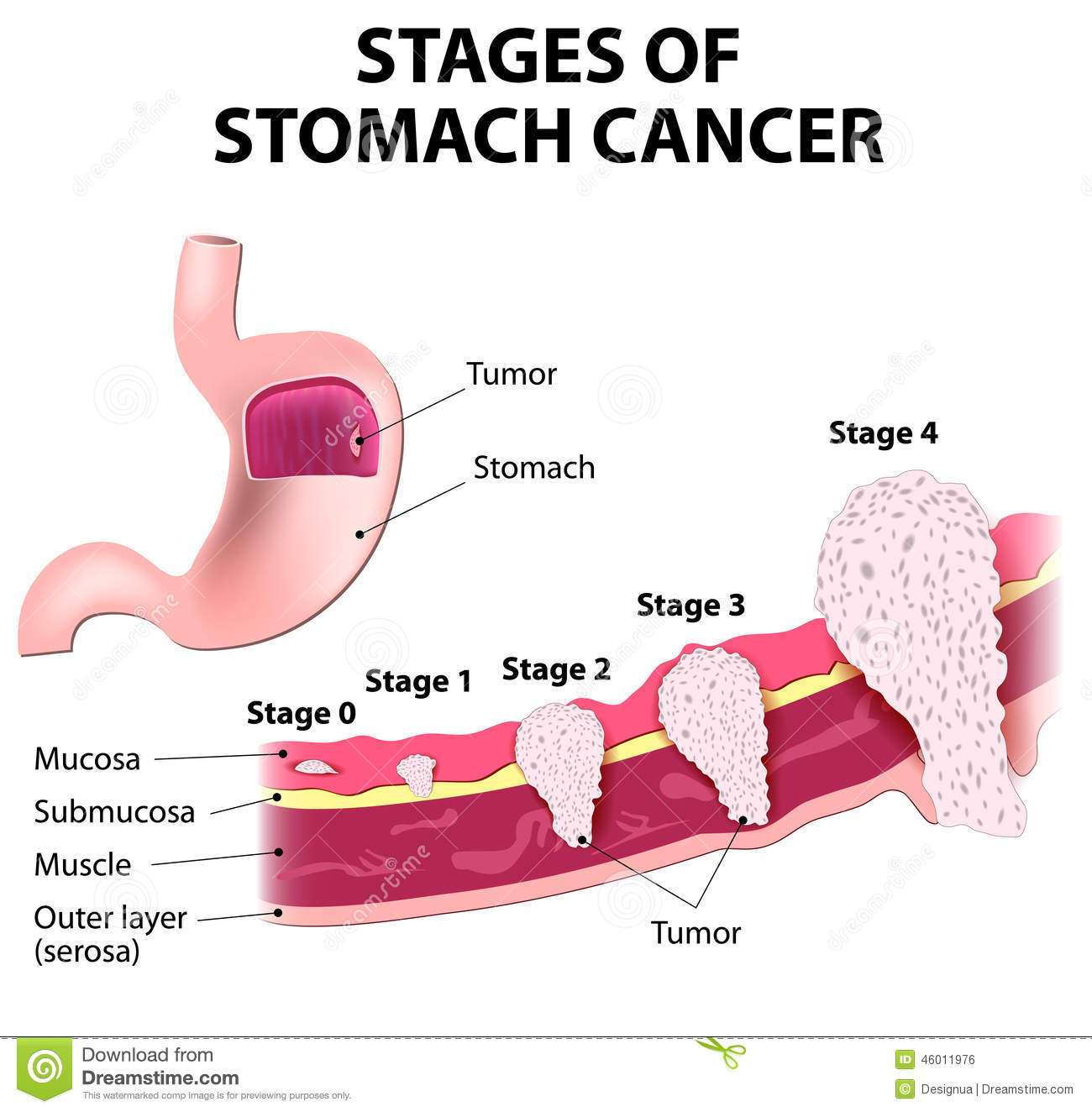 Stomach And Liver Cancer Pictures Wallpapers