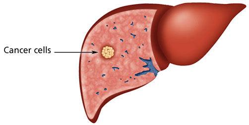 What Causes Liver Cancer Pictures Wallpapers