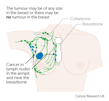 Breast Cancer Stages And Treatment Pictures Wallpapers