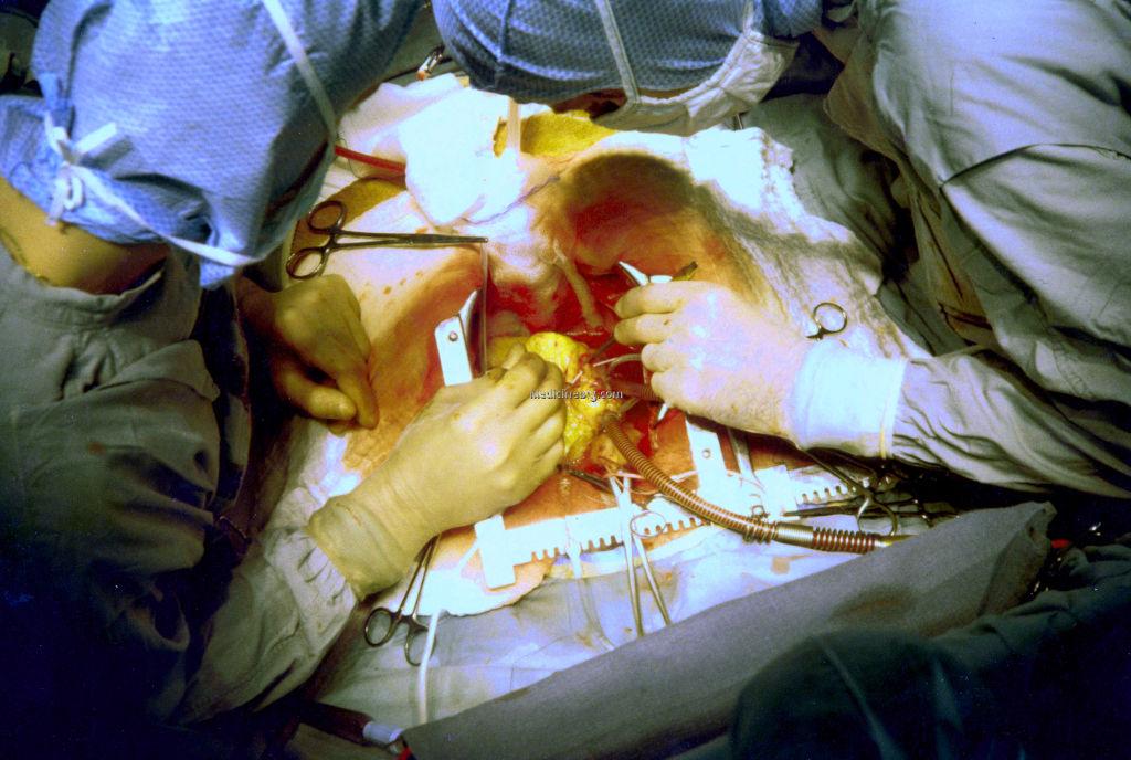after heart bypass surgery