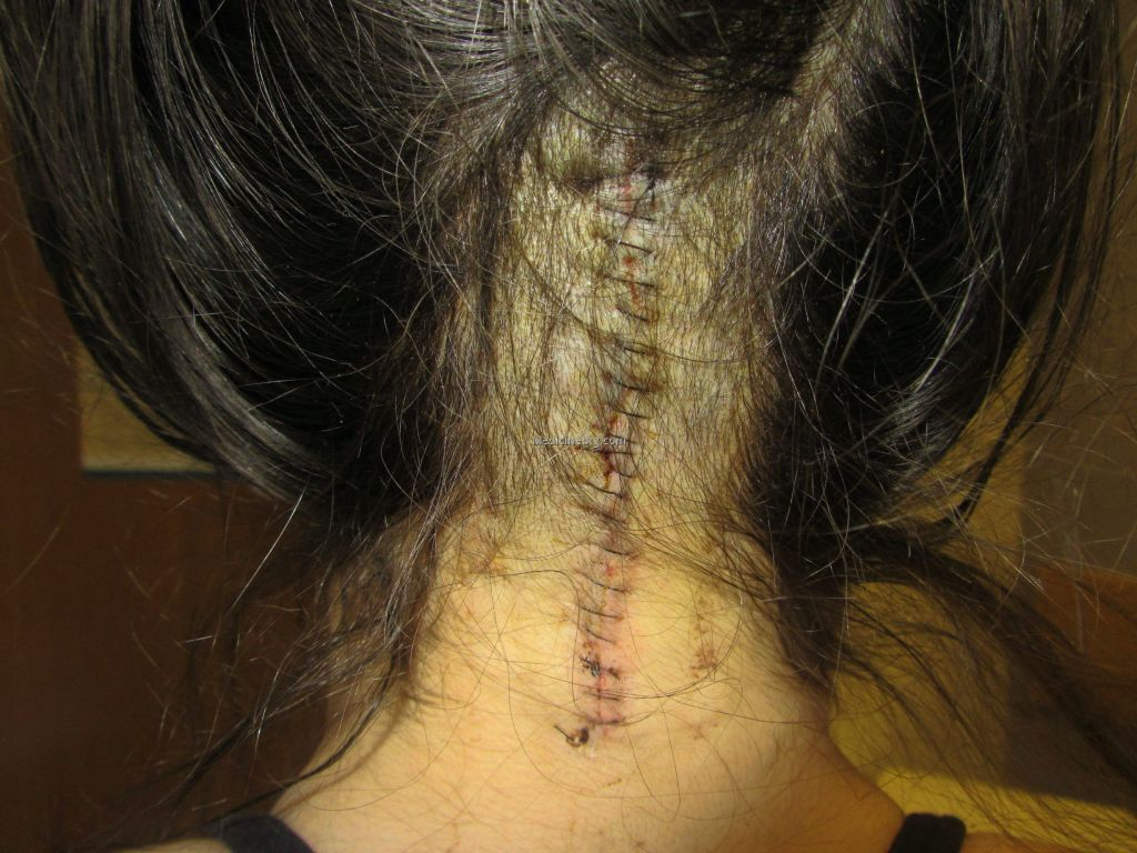 Brain Surgery Scar Pictures Wallpapers