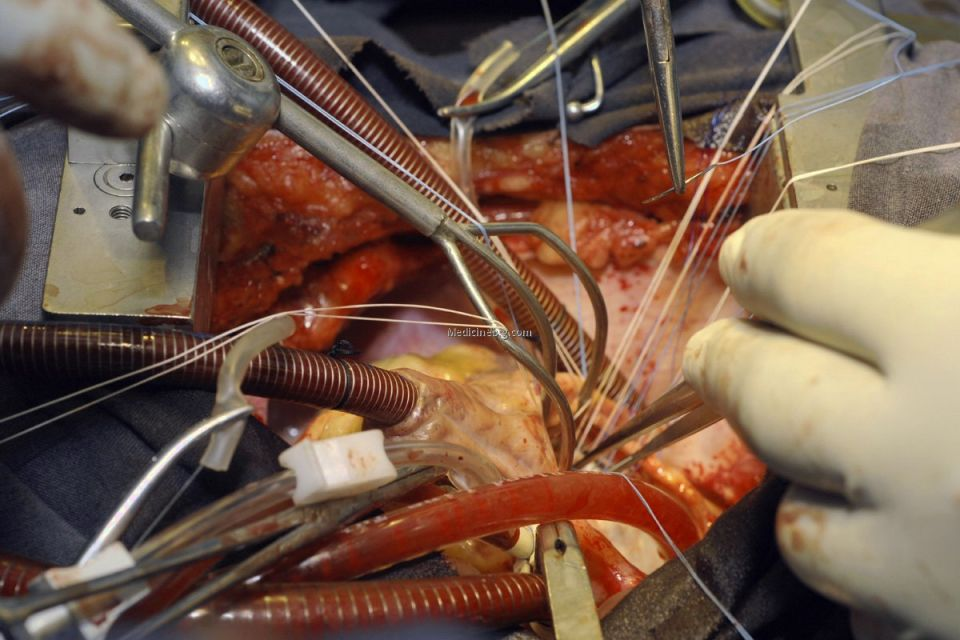 first heart transplant surgery