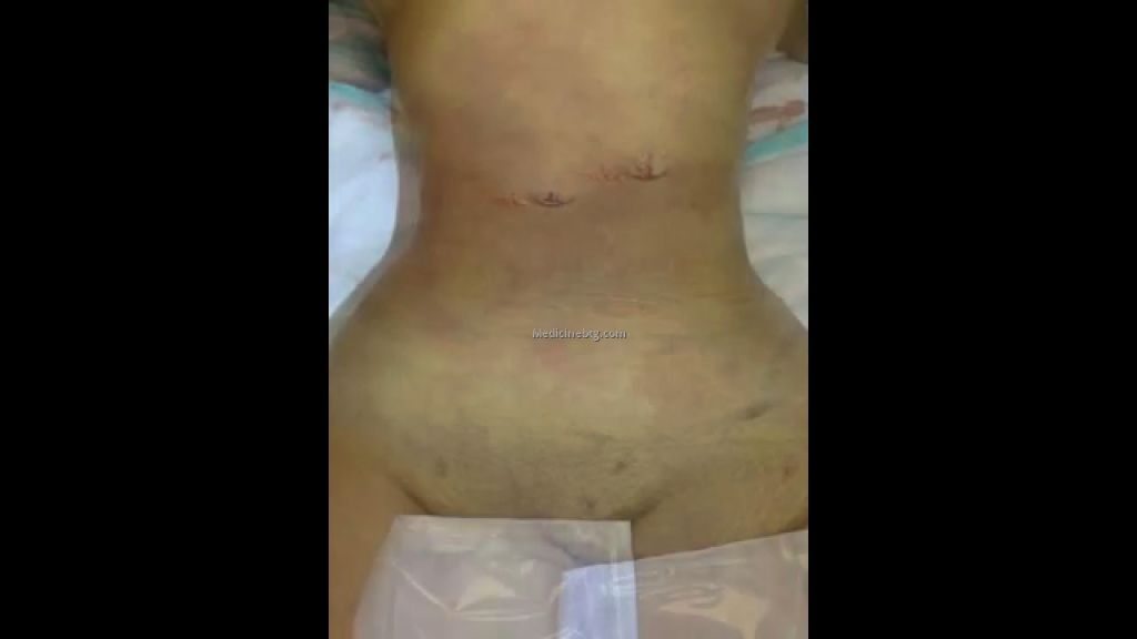 stomach surgery for weight loss