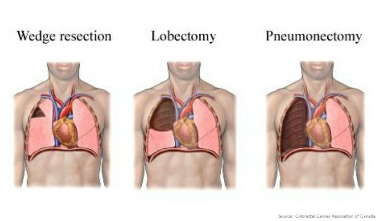 About Bowel Cancer Lung Resection 18882