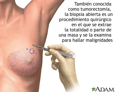 Biopsia abierta del seno 182838