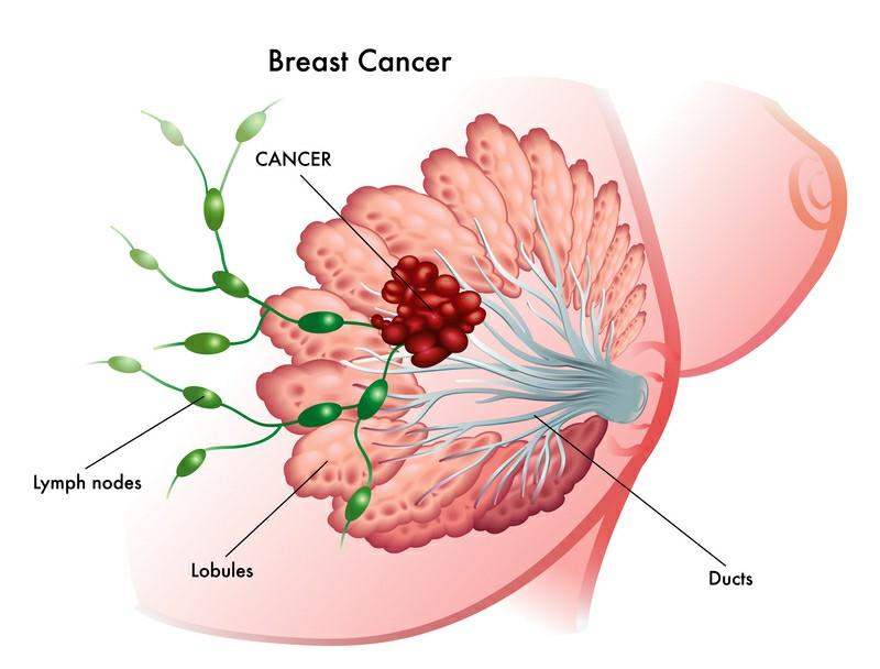 Breast Cancer Lump 182772