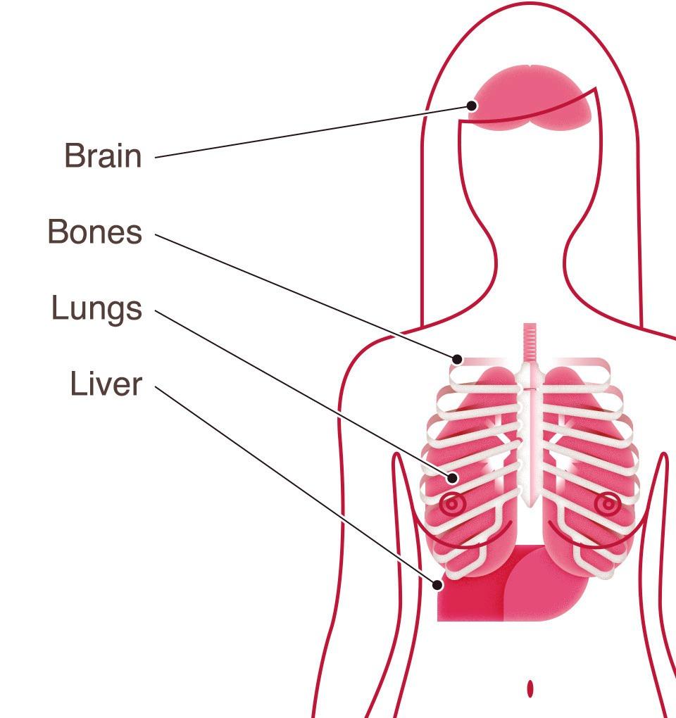Breast cancer type metastatic organs 17262