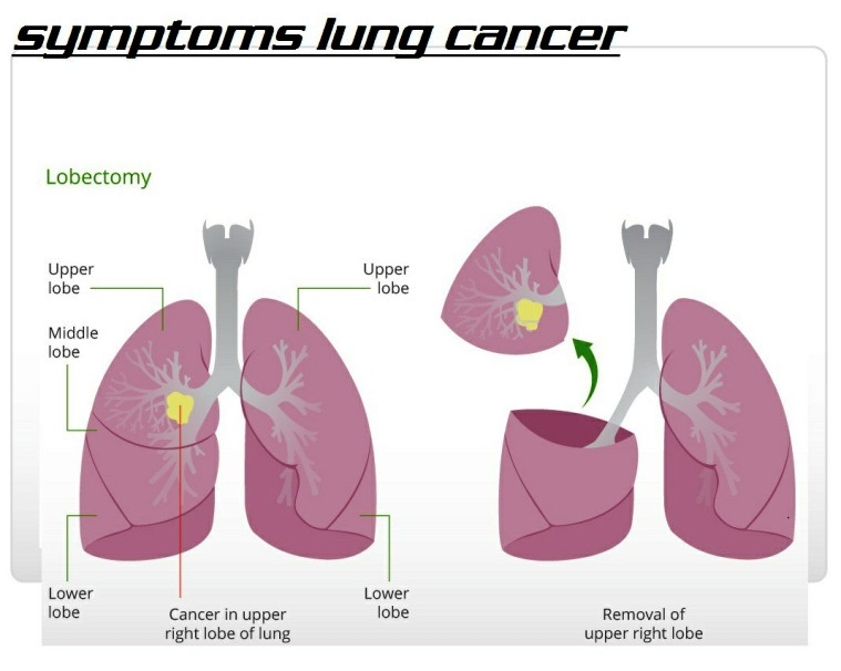 Cancer in Upper Right Lobe of Lung Pictures Wallpapers