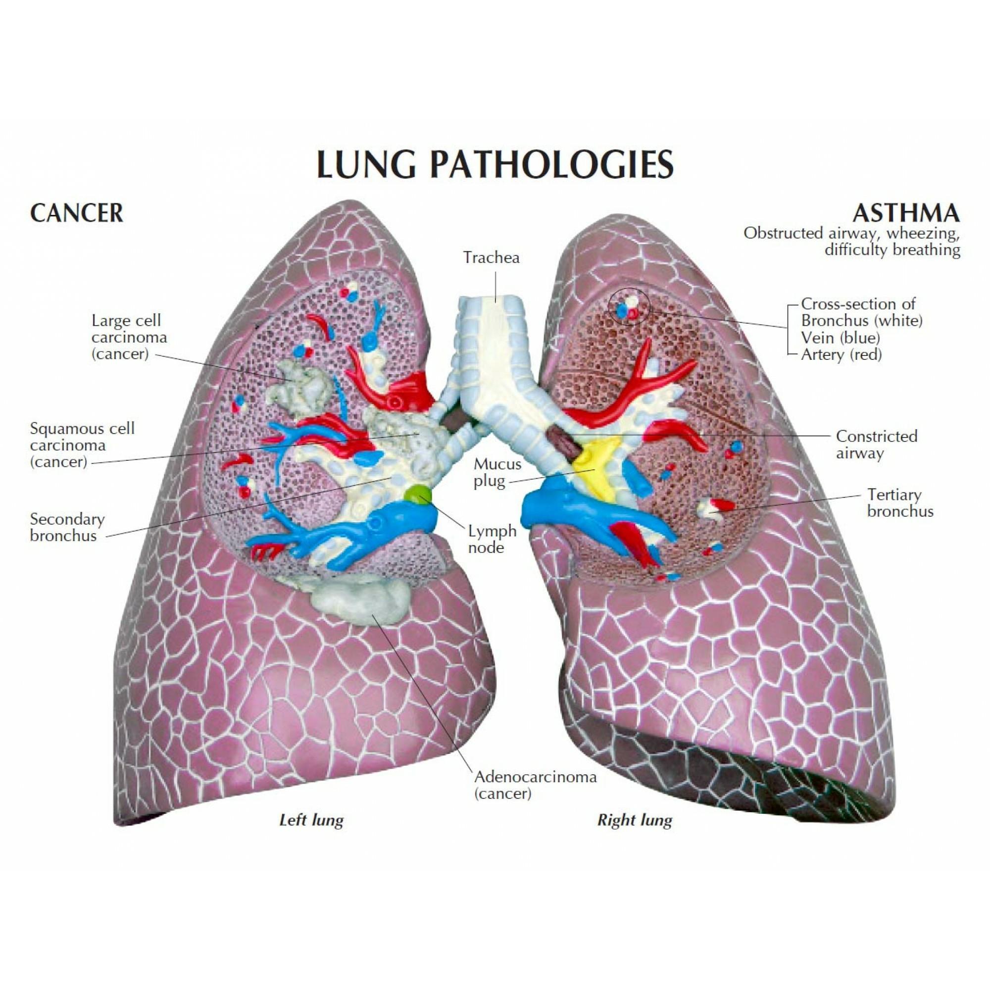 Diseased Lung Model