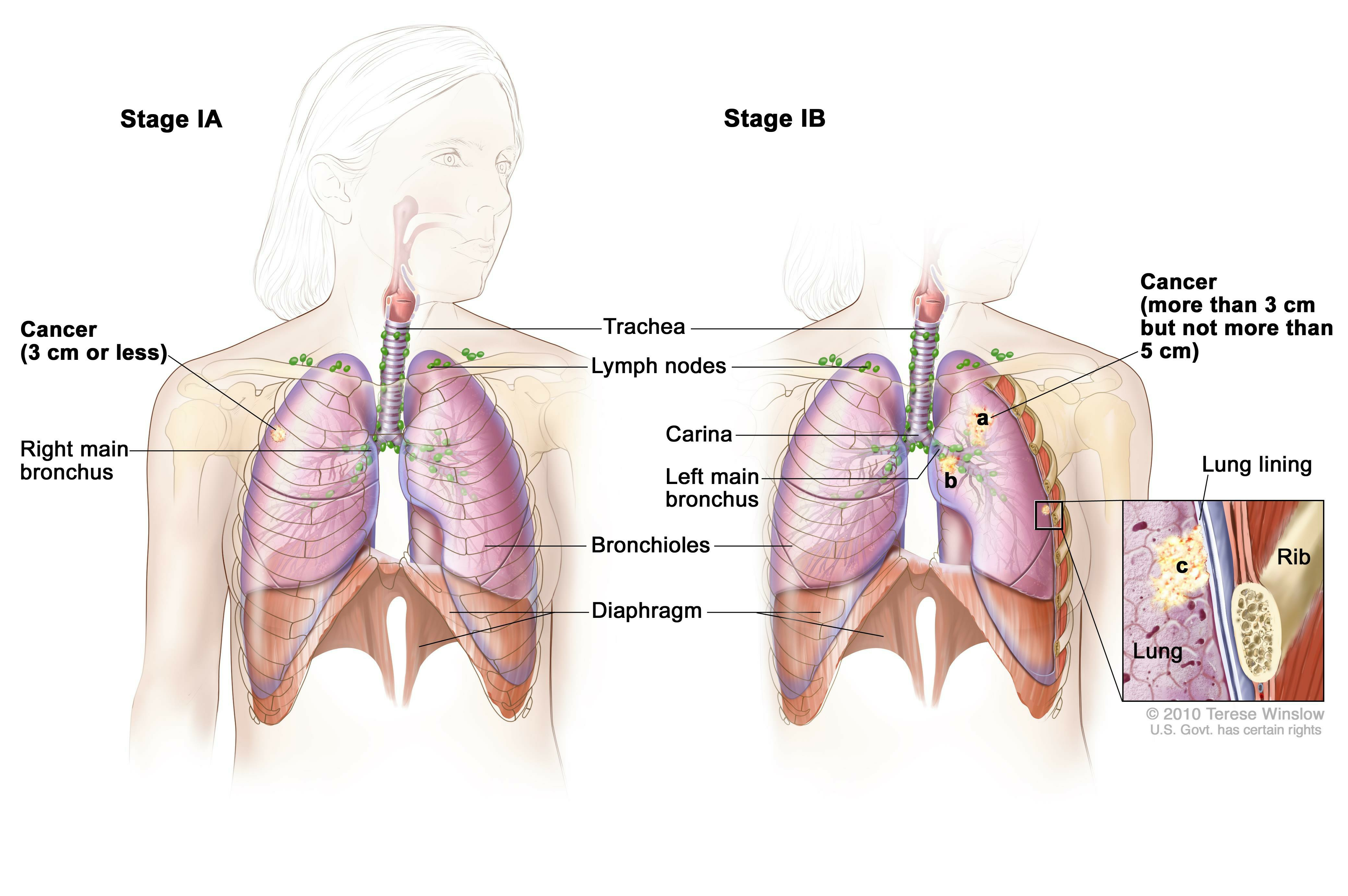 Enlarge Two panel drawing of stage I non small cell lung cancer 172733