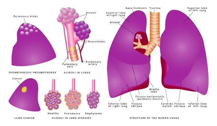 Lung Cancer Diagnosis Pictures Wallpapers