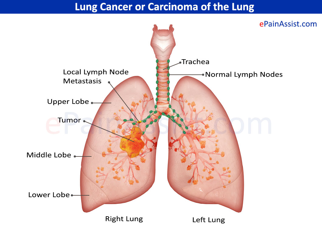 Lung Cancer Or Carcinoma Of The Lung 171 Medicinebtg Com