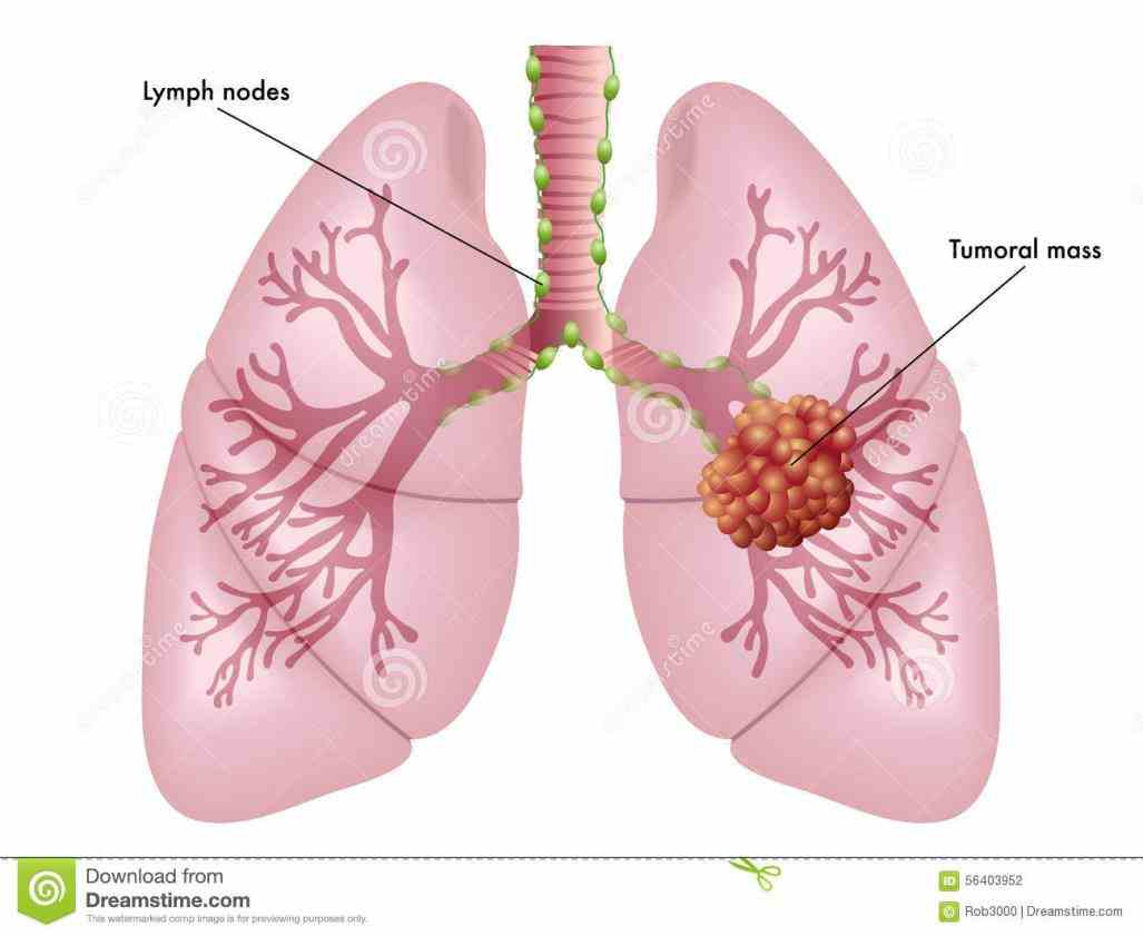 On The Lung cancer is the uncontrolled growth of