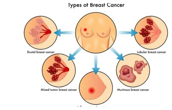 Pain in the Breast or Chest Area 113244