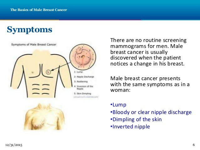 Tara PowerPoint Male Breast Cancer 155252
