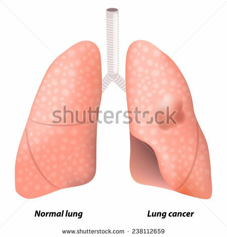 This illustration shows malignant tumor in the upper lobe of the person's left