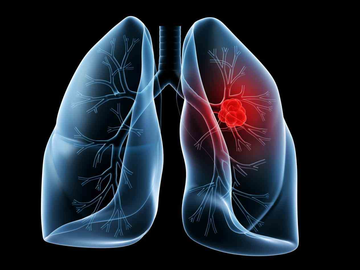 Cancer On The Lung Pictures Wallpapers