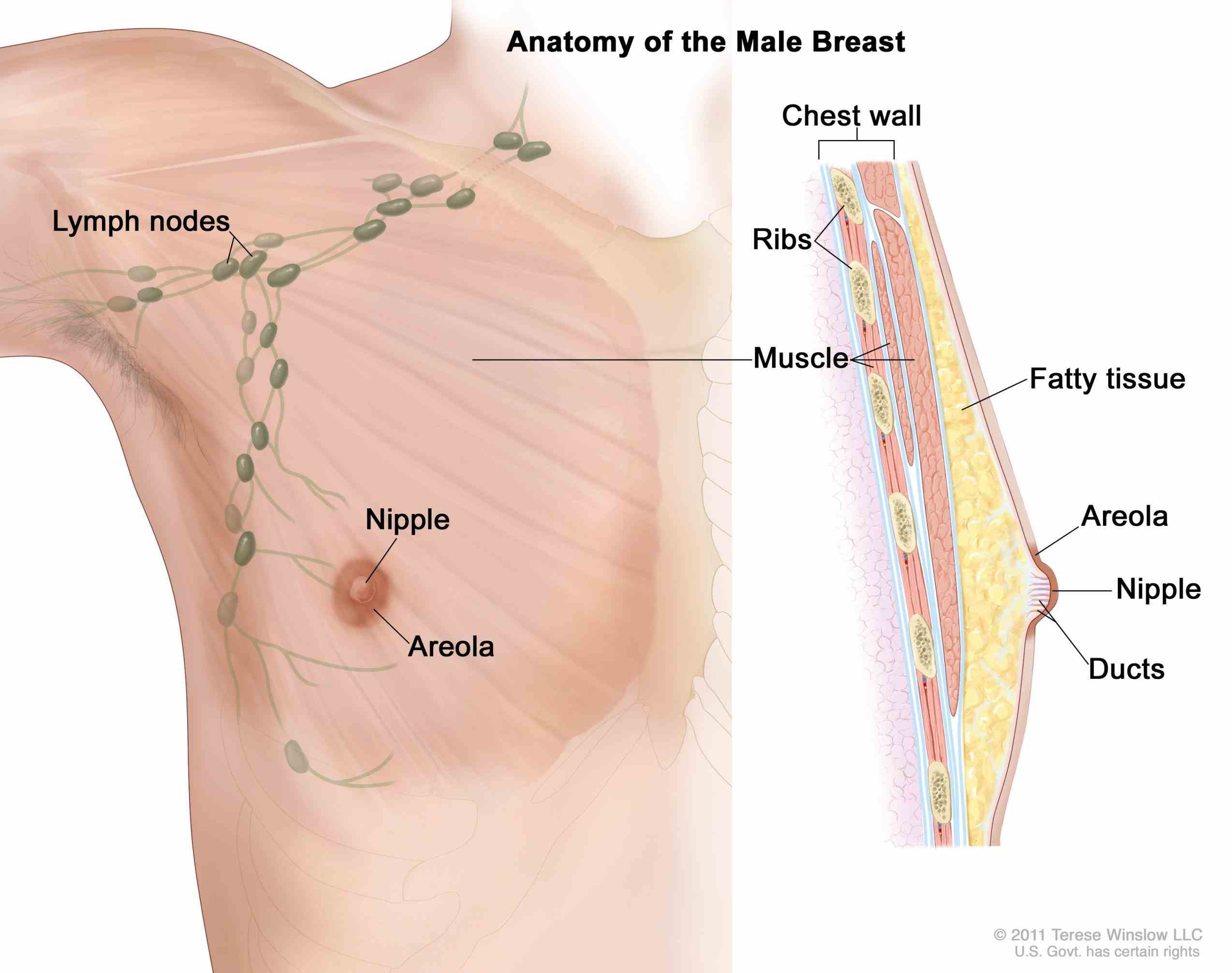 is more likely to be cancer but breast cancers
