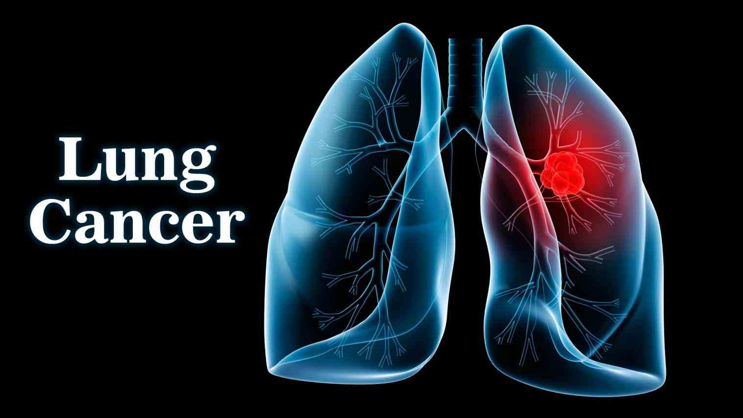 Cancer In The Lungs Pictures Wallpapers